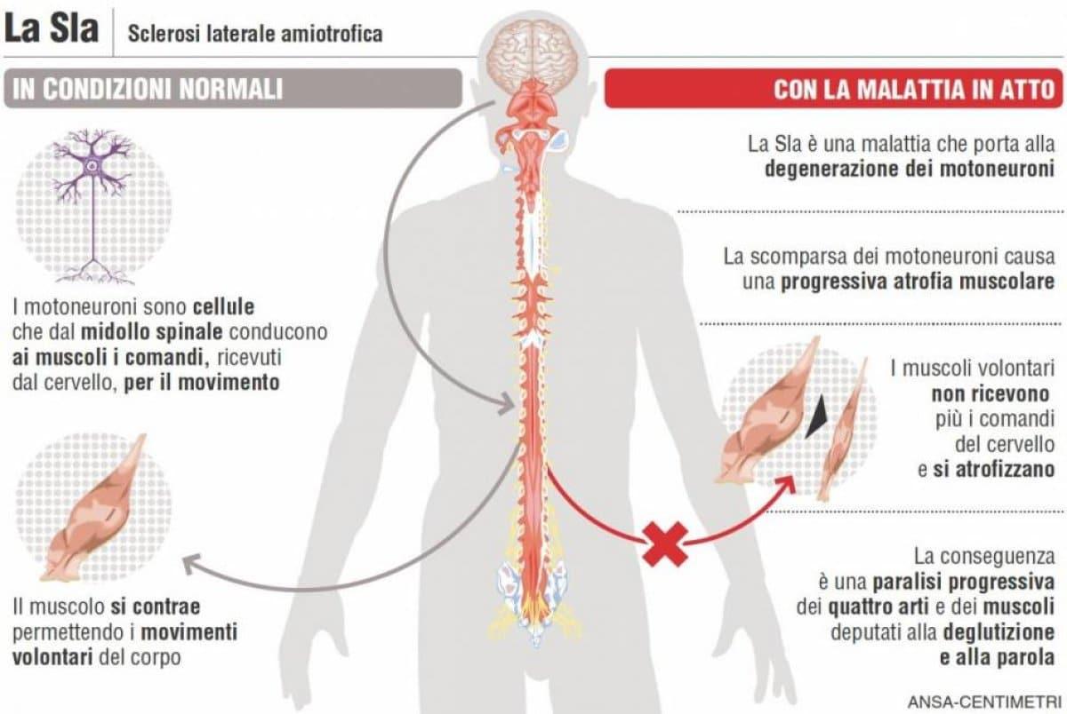 SLA – Sclerosi Laterale Amiotrofica